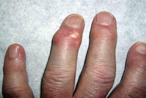 Gout Finger Joint