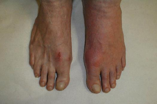 Cure Gout Pain Naturally