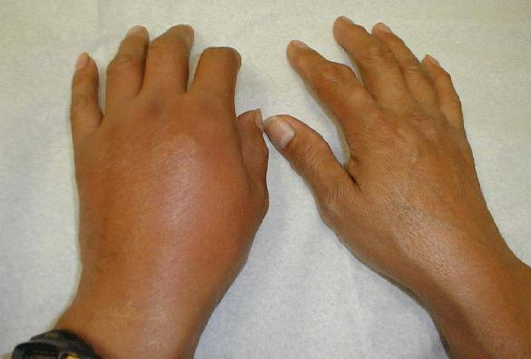 Gout In Hands